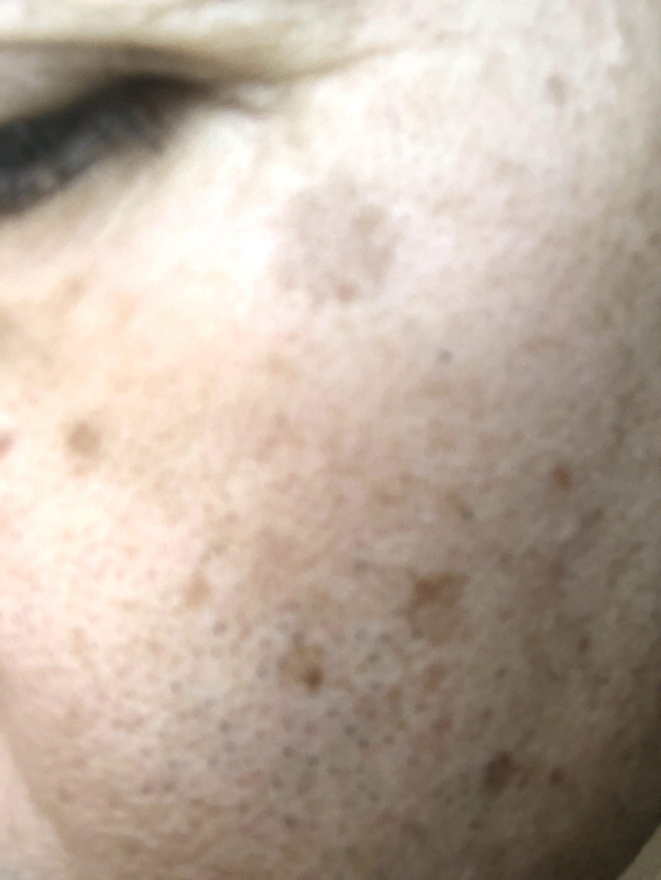 方法 シミ を 顔 の 取る